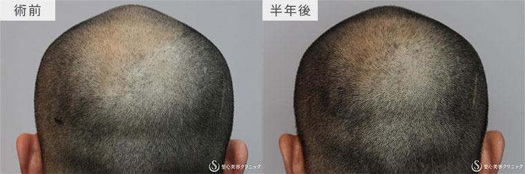ケラステム毛髪再生