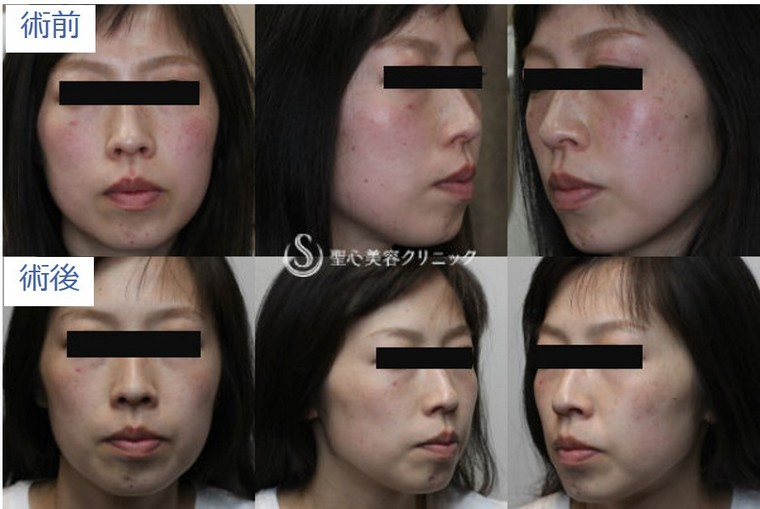 症例写真 術前術後比較 美容皮膚科 そばかす・赤ら顔