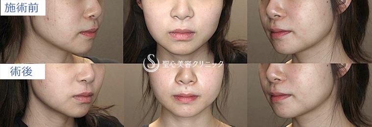症例写真 術前術後 小顔の整形