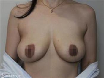 症例写真 術後 乳房吊り上げ術
