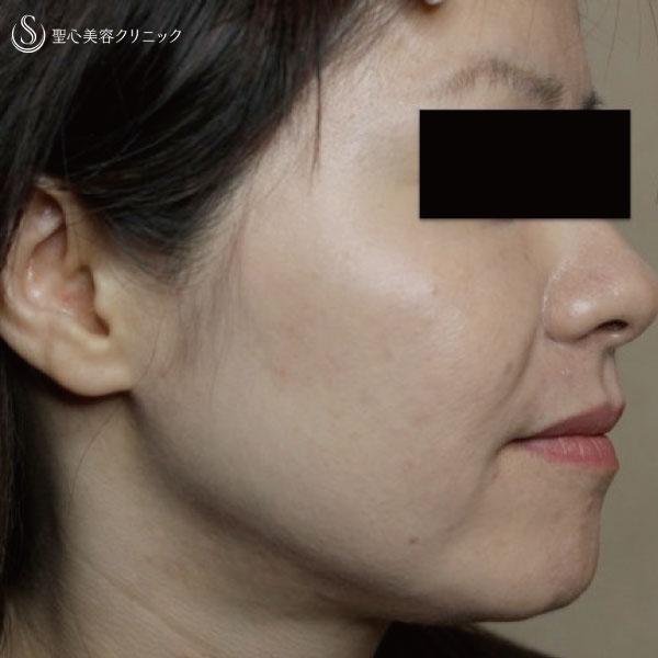 症例写真 術後 美容皮膚科 たるみ
