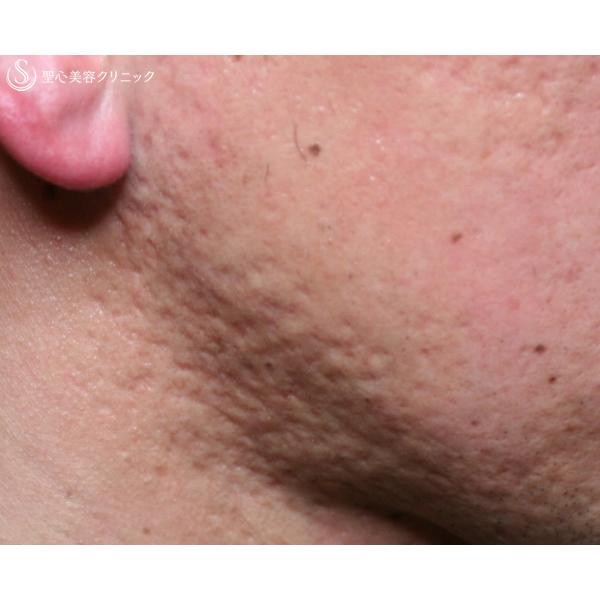 症例写真 術前 美容皮膚科 ニキビ跡