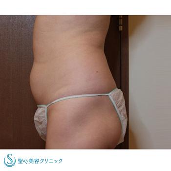 症例写真 術前 ベイザーリポ2.2脂肪吸引 腹部