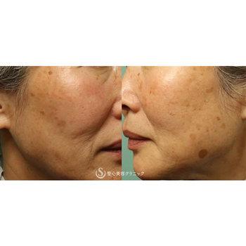 症例写真 術前 美容皮膚科 シミ・そばかす