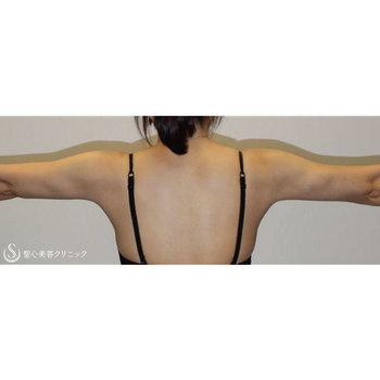 症例写真 術後 ベイザーリポ2.2脂肪吸引 二の腕