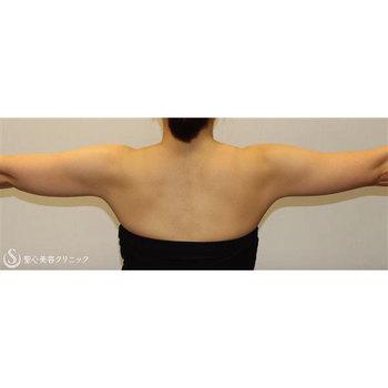 症例写真 術前 ベイザーリポ2.2脂肪吸引 二の腕