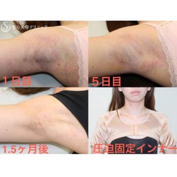 症例写真 術後 汗症・わきが治療 ミラドライ
