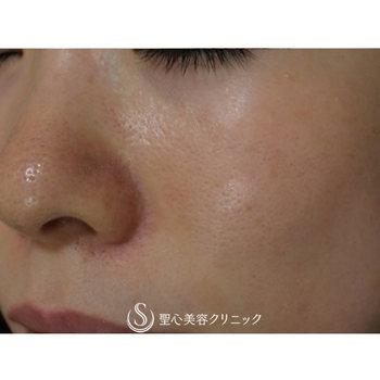 症例写真 術後 美容皮膚科 毛穴
