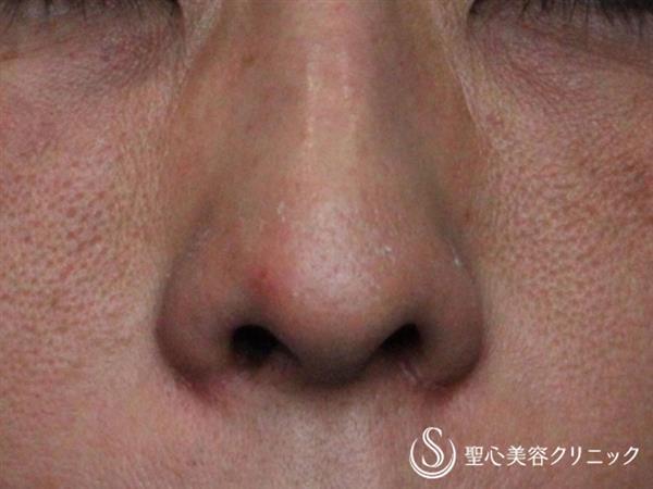 症例写真 術後 小鼻縮小術