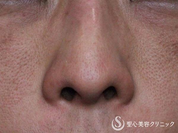 症例写真 術前 小鼻縮小術