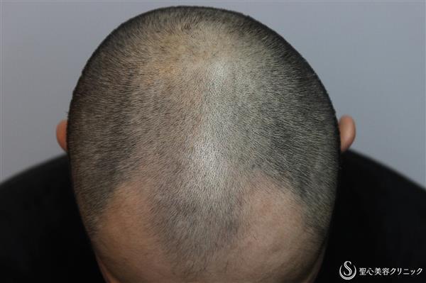 症例写真 術後 ケラステム毛髪再生