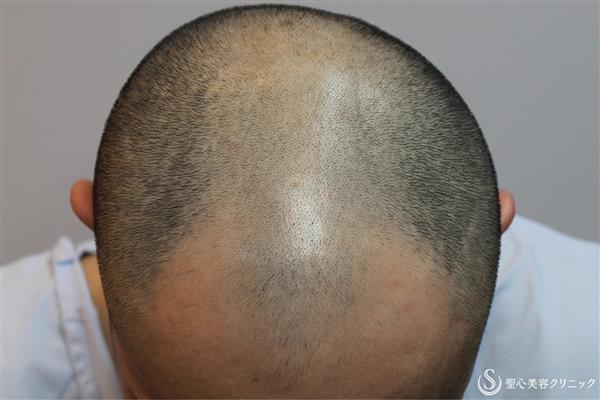 症例写真 術前 ケラステム毛髪再生