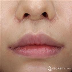 症例写真 術後 口角挙上術・リップリフト