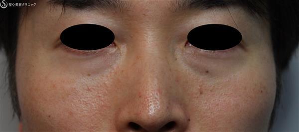 症例写真 術前 経結膜下脱脂術
