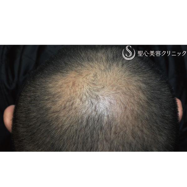 症例写真 術後 毛髪再生療法 ケラステム毛髪再生