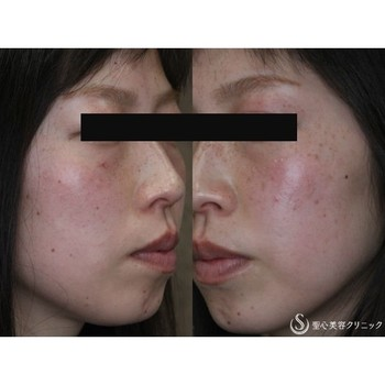 症例写真 術前 美容皮膚科 そばかす・赤ら顔
